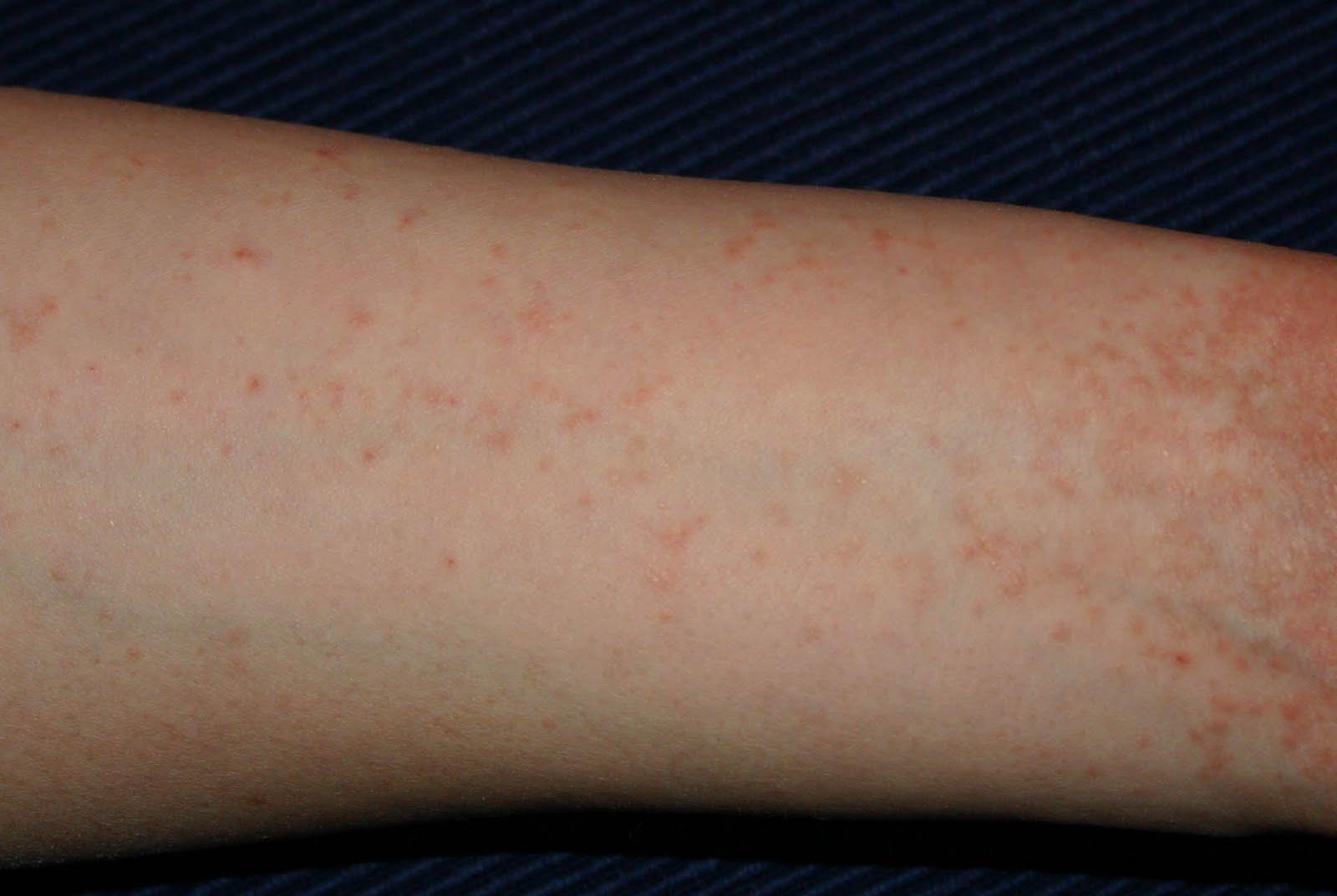 egy vörös folt jelent meg a karon a könyök közelében vörös foltok a bőrön hepatitis után