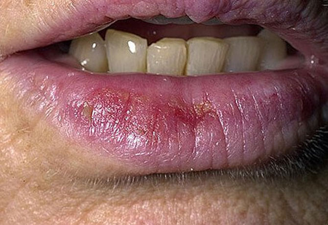 vörös foltok a bőrön az ajkak közelében