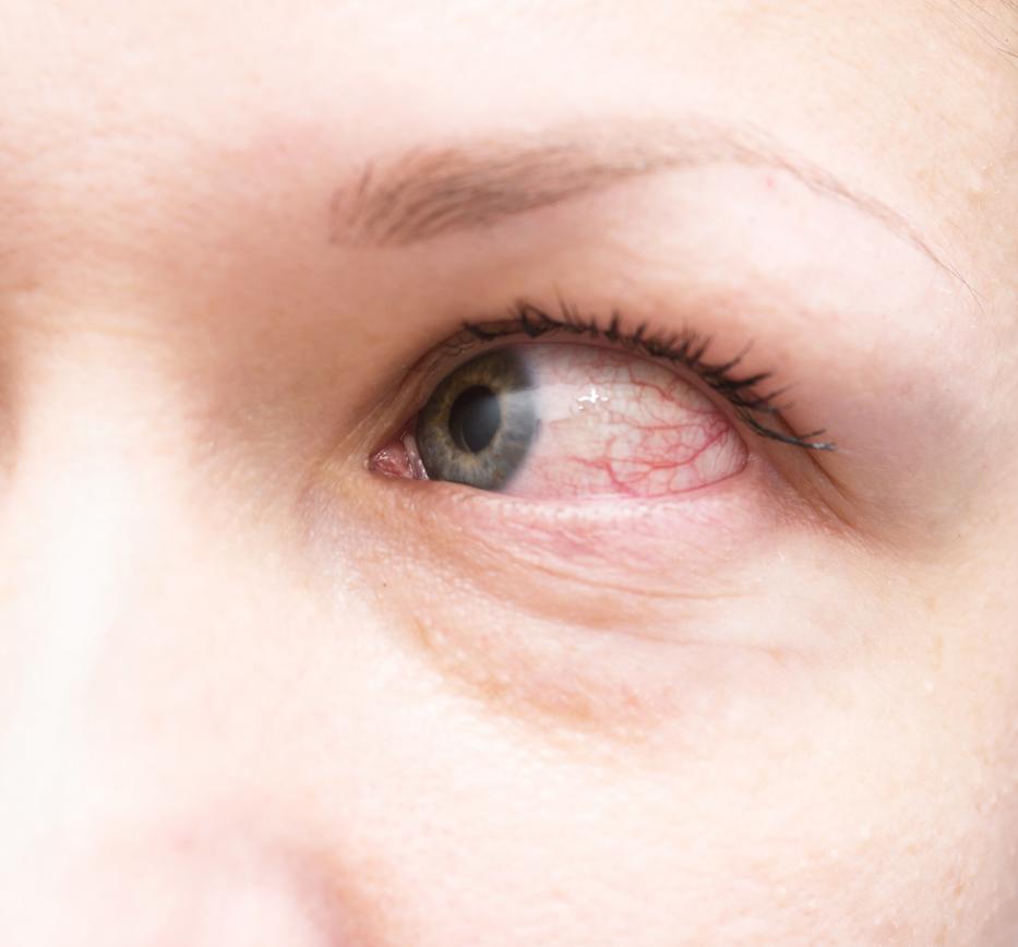 vörös pikkelyes folt a szem sarkában)