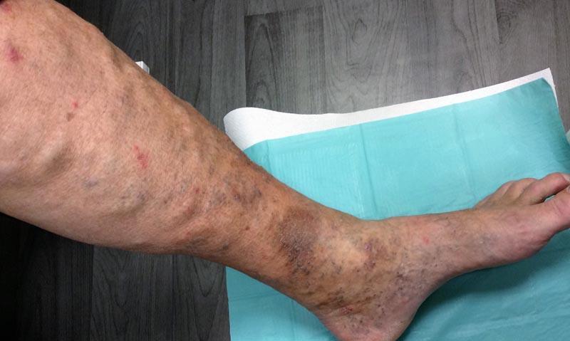 az alsó lábszáron viszkető vörös folt