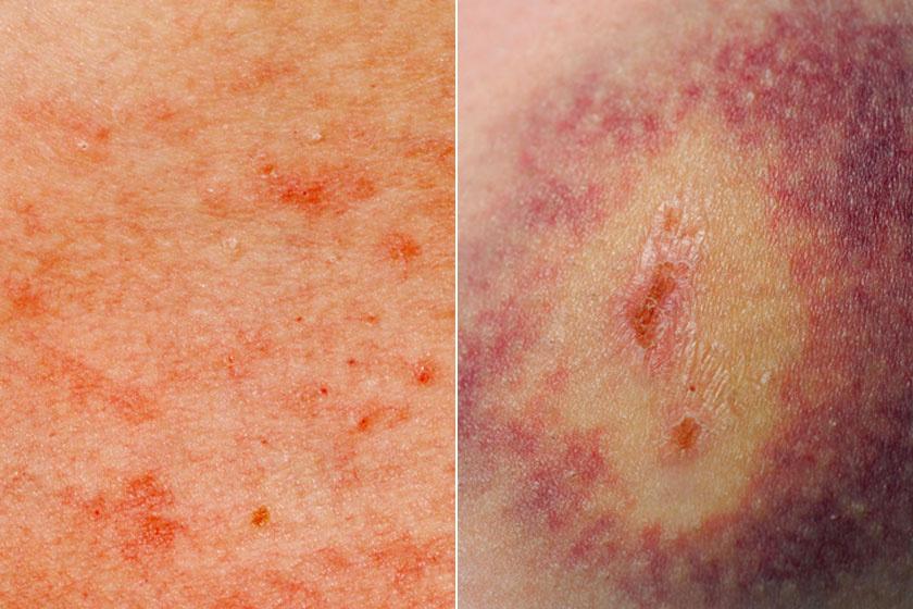 vörös foltok a lábakon diabetes mellitus genitális pikkelysömör kezelése