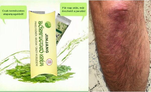 kenőcs pikkelysömör ekcéma dermatitis)