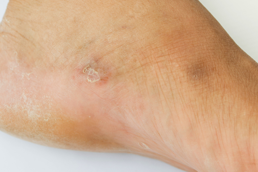 a lábán a vörös folt hámlik