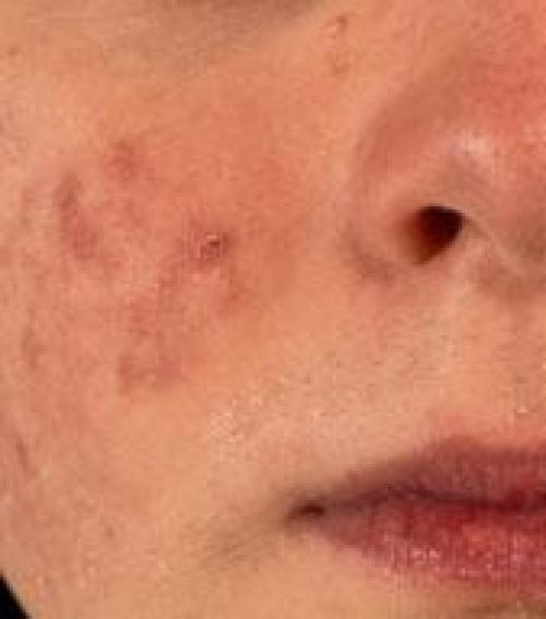 vörös foltok az arcon a száj közelében)