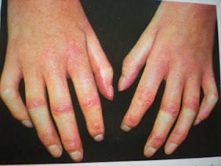 kiütések az ujjakon vörös foltok formájában