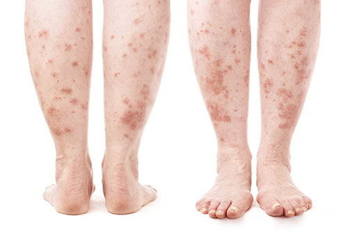 vörös lábakkal rendelkező folt jelent meg a lábán