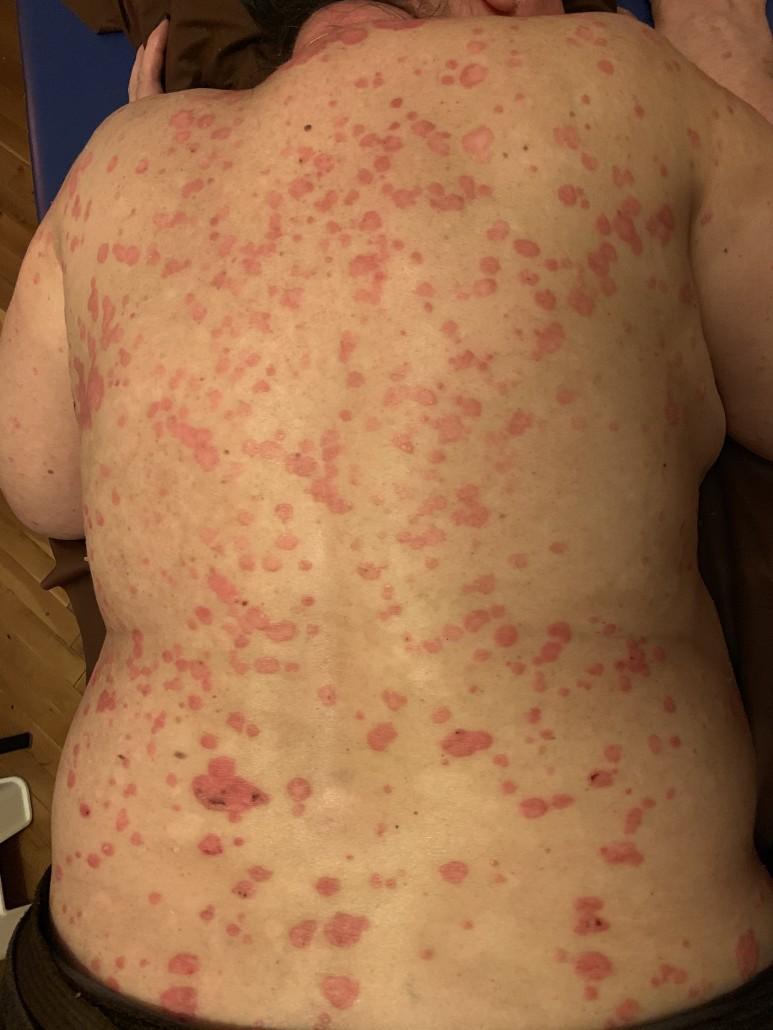 pikkelysömör és kezelése népi vörös foltok jelennek meg a kéz bőrén