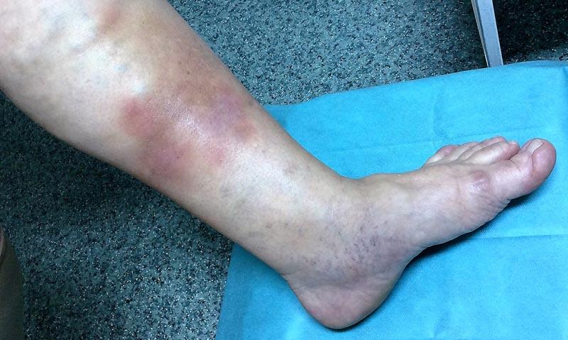vörös folt az alsó lábszáron és viszket