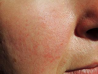 vörös viszkető foltok az orr közelében)