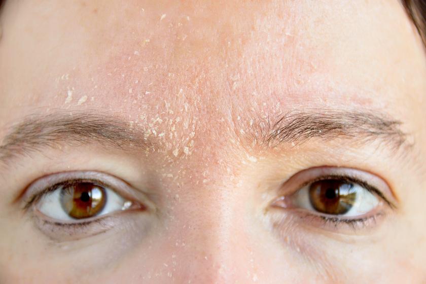 az arcon a bőr és a vörös foltok erősen hámlanak