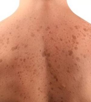 Barna foltok a bőrön: így kezelhetjük a hiperpigmentációt otthon - EgészségKalauz