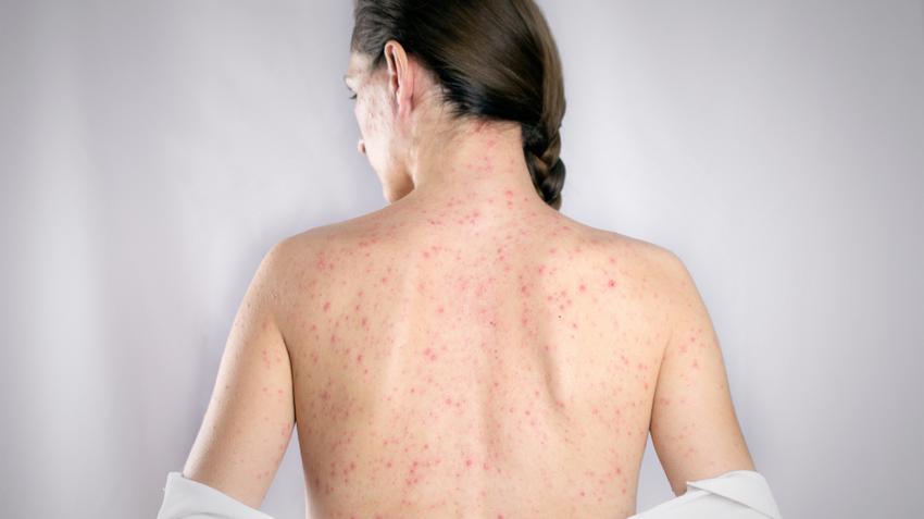 pikkelysömör krémek a gyógyszertárban hogyan kezeljük a fejbőr pikkelysömörét népi gyógymódokkal