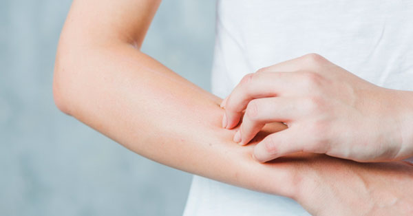 pikkelysömör kezelése a fején alternatív módszerekkel kiütések a kezeken vörös foltok formájában felnőtteknél