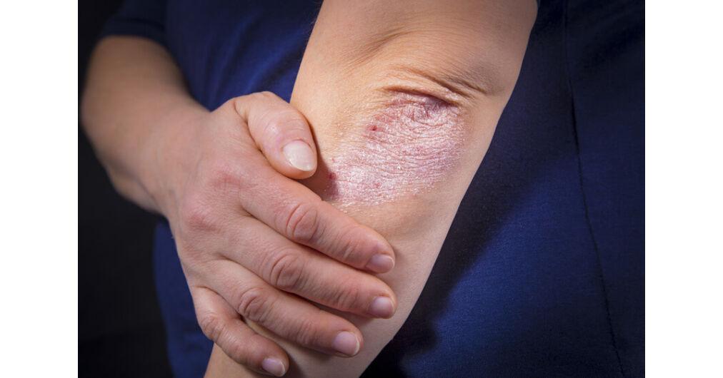 vörös foltok a mellkason viszketnek pikkelysömör kezelése badami tianshival