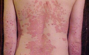 pikkelysömör kezelése tioszulfátokkal piros foltok a gyomorban okot