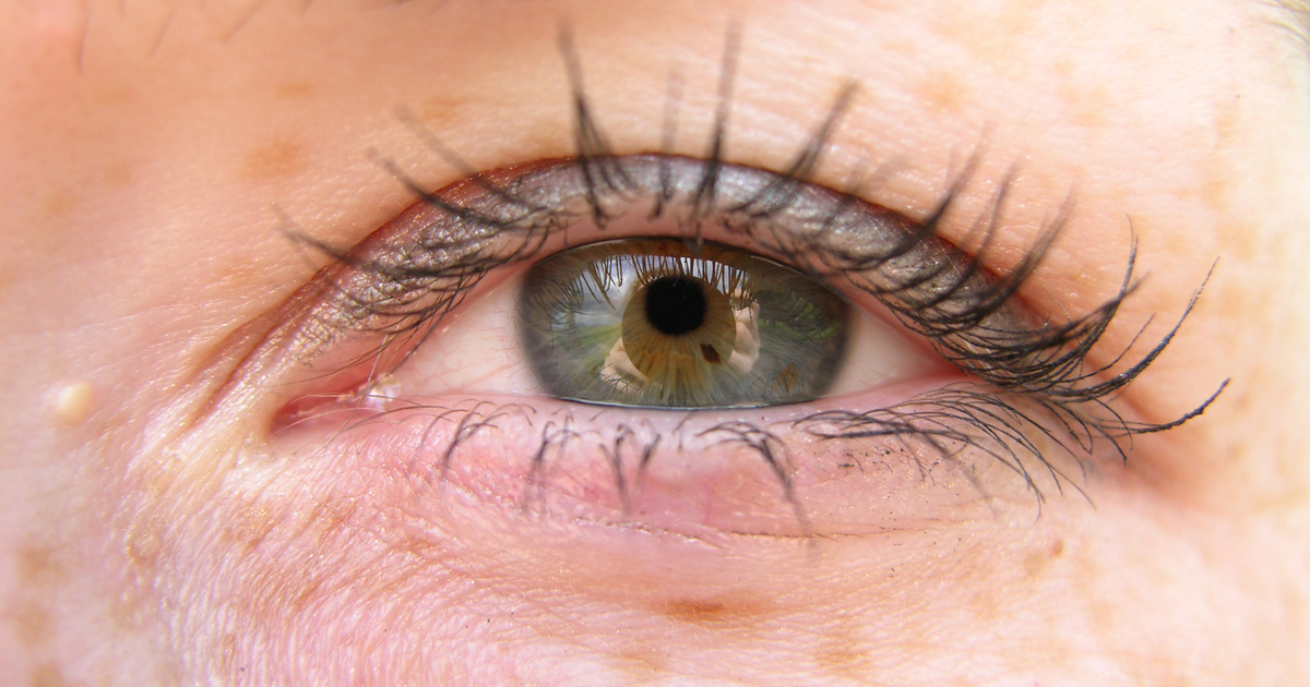 a szem felett a vörös folt leválik, mint kezelni)