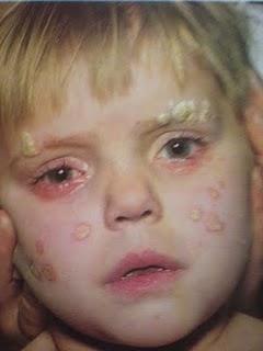 az arcon és a fején vörös foltok és pikkelyesek