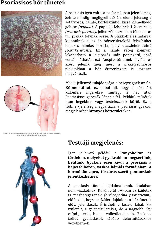 pikkelysömör tüneteinek kezelése népi gyógymódok)