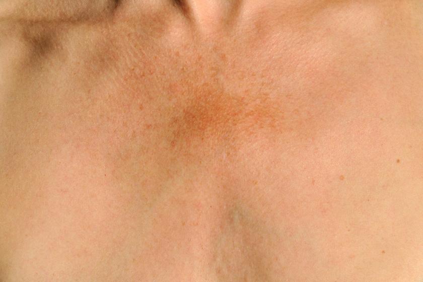 orvosság a fejbőrön lévő vörös foltok ellen pikkelysömör orvosság ezüsttel