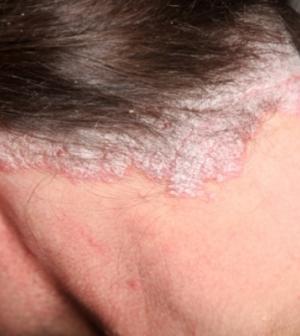 fejbőr pikkelysömör tünetei otthon