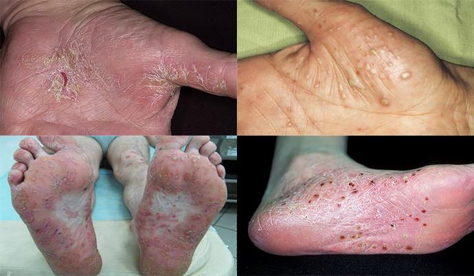 phosphogliv kezelése pikkelysömörhöz)