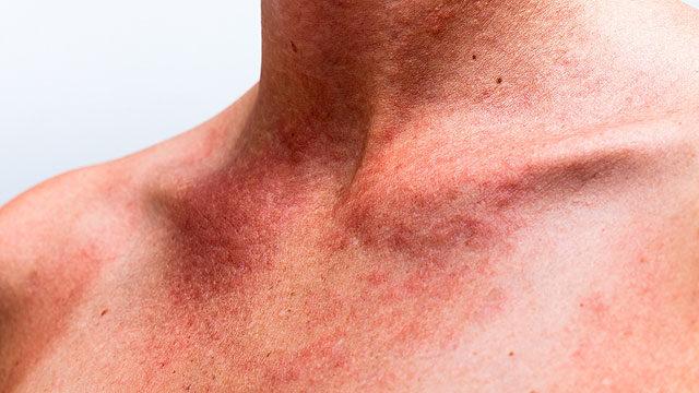 oxigénkezelés pikkelysömörhöz seborrheás dermatitis vagy pikkelysömör kezelése