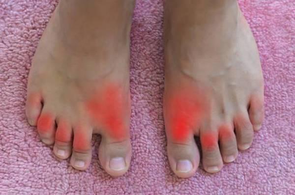 vörös folt a lábán, csonttal)