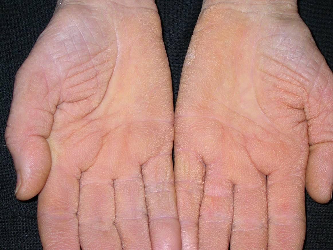 vörös foltok jelentek meg a kezek alatt a bőr alatt)