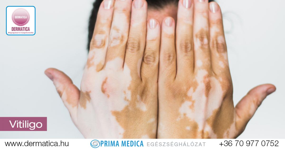 vitiligo s pikkelysömör kezelése