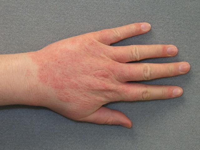 gyulladt vörös foltok a kézen