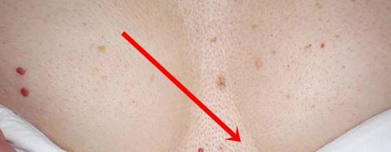 vörös pöttyök a lábán