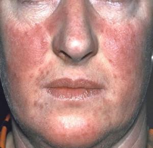 a pikkelysömör súlyosbodása az arc kezelésén