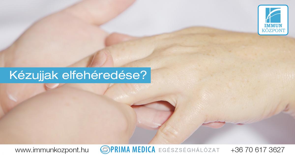 progresszv psoriasis kezelse