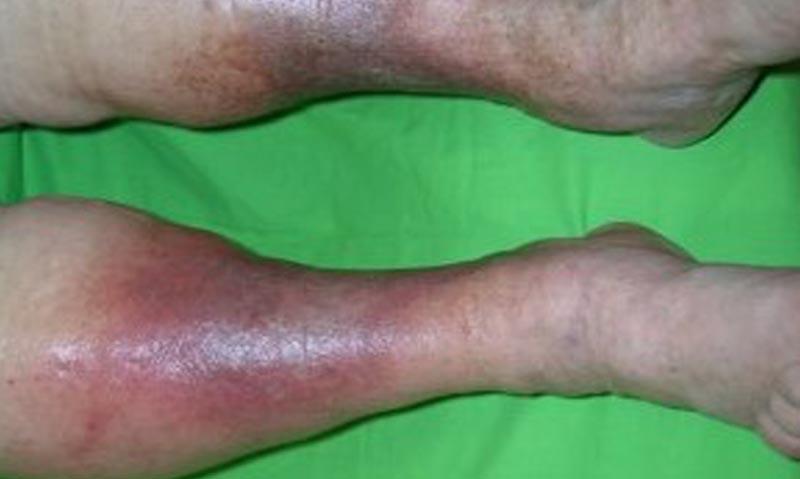 vörös vénás foltok a lábakon