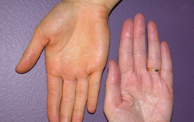 teardrop a pikkelysömör kezelése fájdalmas vörös folt jelent meg az arcon
