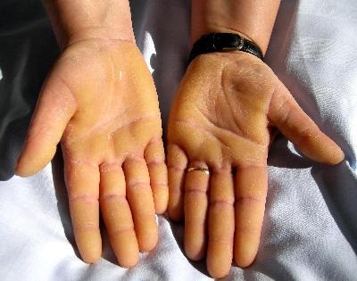 a fejbőr kezelése pikkelysömörből népi gyógymódokkal folyékony gyógyszer pikkelysömörhöz