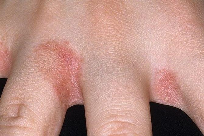 Hólyagos betegségek a bőrön