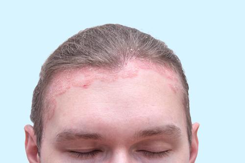 pikkelysömör a fej kezelsi mdszerein vörös foltok a könyökön alternatív kezelés