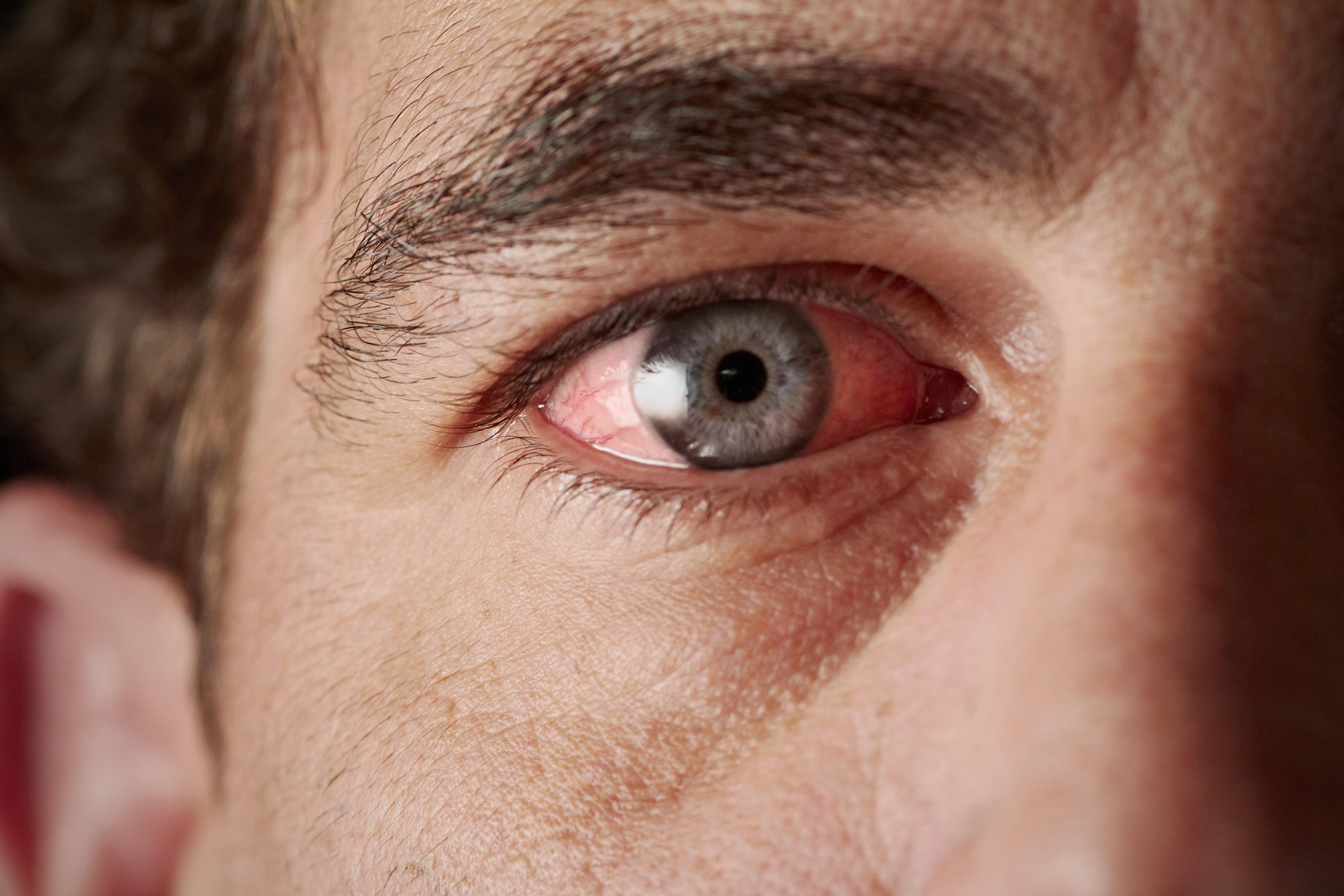 ha vörös foltok húzódnak le a szem alatt