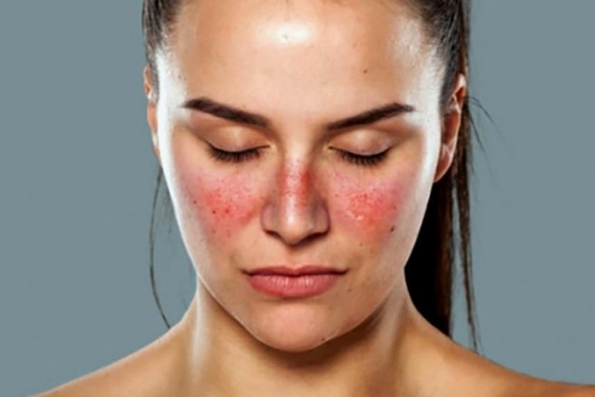 milyen betegség piros foltok az arcon