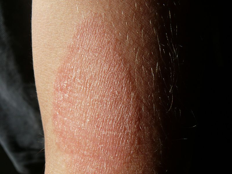vörös foltok a könyökön alternatív kezelés