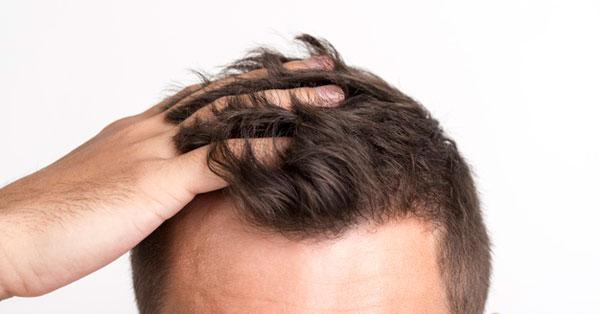 Fejbőr gyulladásos elváltozásai