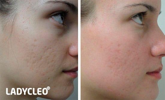 amely segít az arcon fellépő vörösségben és a vörös foltokban