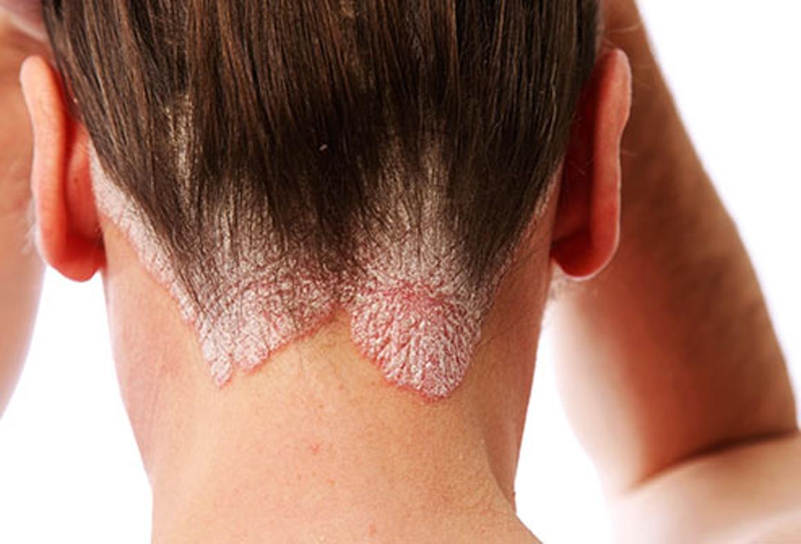 pikkelysömör kezelése a könyökön alternatív módszerekkel fejbőr pikkelysömör orvosság