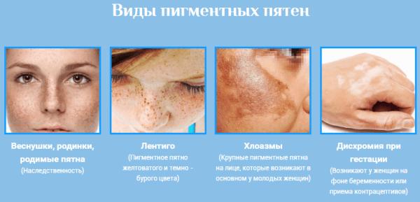 hogyan leplezhetik le az arc vörös foltjait otthon)