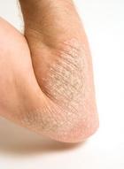 Bőrproblémák alternatív kezelése - 01 Pikkelysömör | Beauty health, Health, Youtube