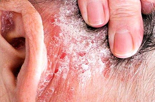 Pustularis psoriasis