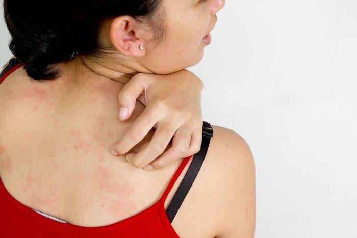 leghatkonyabb gygynvnyek pikkelysömörhöz kiütés a bőrön vörös foltok formájában felnőtteknél hőmérséklet után