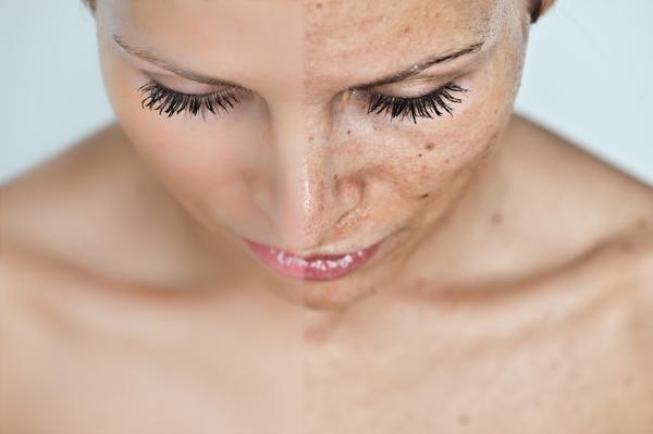 Hogyan lehet kezelni a vörös pelyhes foltokat a fején