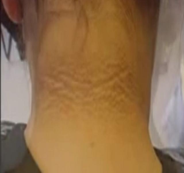 távolítsa el a vörös foltokat a nyakon